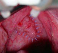 Фото ВПЧ у женщин на интимных органах