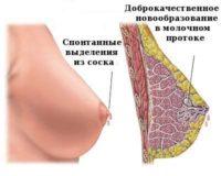 Фотография схемы внутрипротоковой папилломы молочной железы