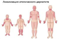 Фотография основных мест проявления атопического дерматита