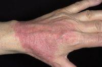 Фотография, как выглядит атопический дерматит с которым не берут в армию