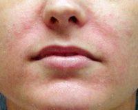 Фотография, как выглядит атопический дерматит на лице