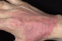 Фото атопического дерматита у взрослых