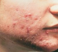 Фотография, как выглядит атопический дерматит у взрослых