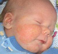 Фотография, как выглядит себорея у новорожденного