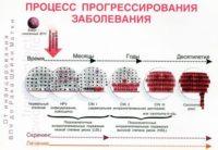 Фото инфографики на которой показаны пути развития ВПЧ 52 у женщин