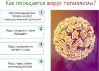 Фото инфографики на которой показаны пути передачи ВПЧ 52 типа у женщин