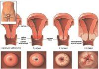 Фото стадий развития вируса папилломы человека у женщин в матке