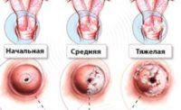 Схема развития вируса папилломы человека у женщин на шейке матки