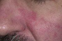 Фотография, как выглядит себорейный дерматит