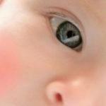 Лечение, профилактика и симптомы диатеза у детей