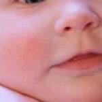 Лечение и причины красных щек у грудничка
