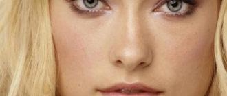 Лечение, фото и симптомы себореи кожи головы