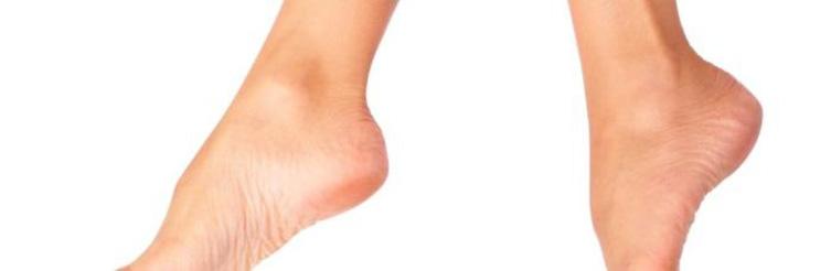 Шипига на пальце ноги лечение фото