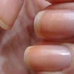 Лечение и фото псориаза ногтей на руках