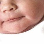 Фото и лечение диатеза у новорожденных на лице