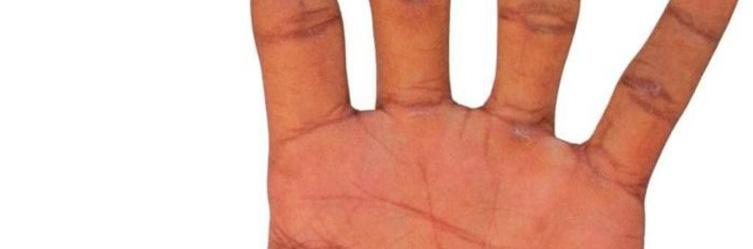 Симптомы, причины, лечение и фото псориаза на руках