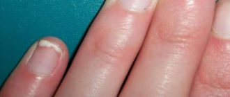 Фото, симптомы и лечение псориаза ногтей