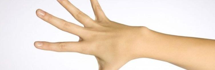 Чем лечить, как вывести и убрать бородавку на пальце
