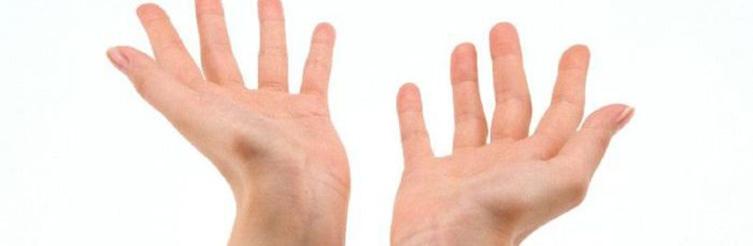 Шипица на пальцах рук