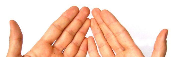 Лечение, причины и фото атопического дерматита на руках