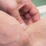 Лечение подошвенной бородавки в домашних условиях
