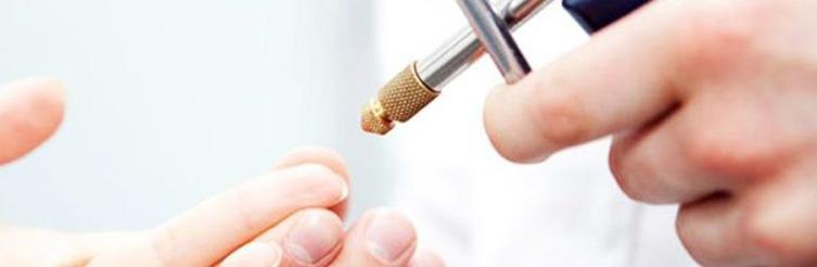 Процедура удаления бородавок жидким азотом